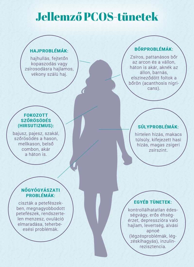Jellemző PCOS tünetek
